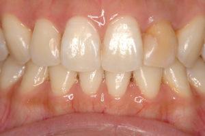 前歯の変色 ホワイトニング