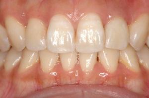 前歯の変色 ウォーキングブリーチ術後