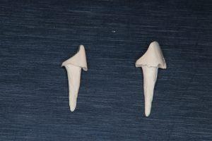 ペクトン(PEKK) スーパーエンプラ 歯根破折