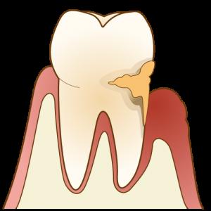 その口臭、虫歯が原因かも?虫歯と口臭の関係性